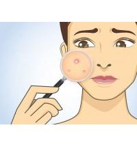 Эффективность антибиотиков против угревой сыпи